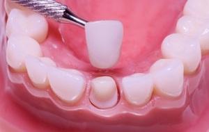 Как подготовиться к протезированию зубной коронкой?