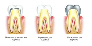 Все виды зубных коронок