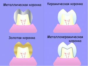 Зубные коронки и зачем они нужны?