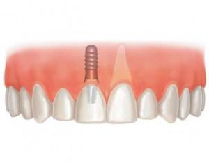Керамическая и металлокерамическая коронка на импланте