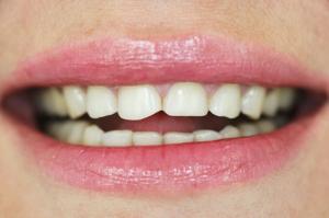 Причина нарушения цвета зубов и лечение