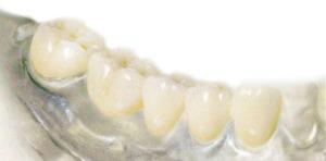 Сколько стоит керамический зуб?
