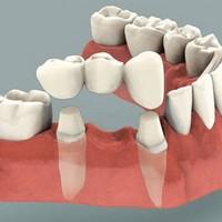 Коронки на зубы и отзывы
