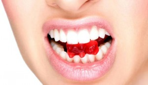 Коронки на зуб и установка