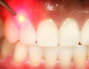 Лечение десен лазером перед протезированием зубов