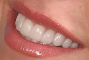 Металлокерамика и передние зубы