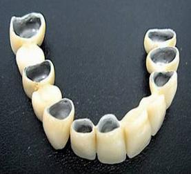 Почему протезирование зубов с помощью металлокерамики популярно?