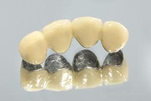 Преимущества и недостатки протезов из металлокерамики