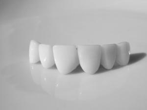 Зубные мосты. Что это?