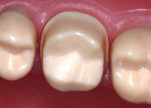 Обточка (препарирование) зубов под металлокерамику