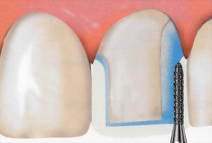 Нюансы препарирования зубов под металлокерамику