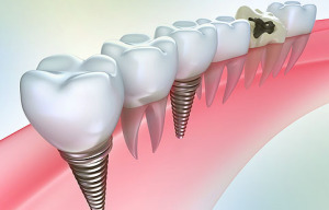 Все плюсы протезирования с помощью имплантов