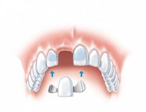 Три основных особенности протезирования передних зубов