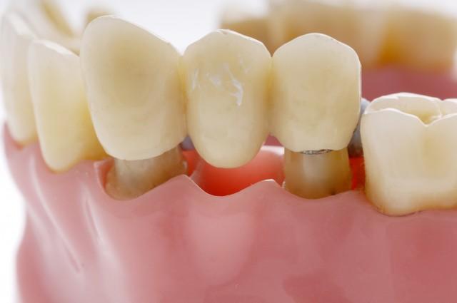 Консольный мост для зубов