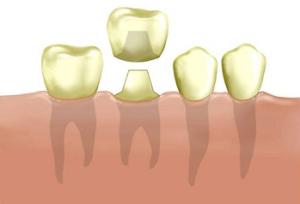 Зубы из фарфора и их стоимость